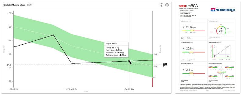 seca mBCA 555 | Bioelektrische Impedanz-Analyse