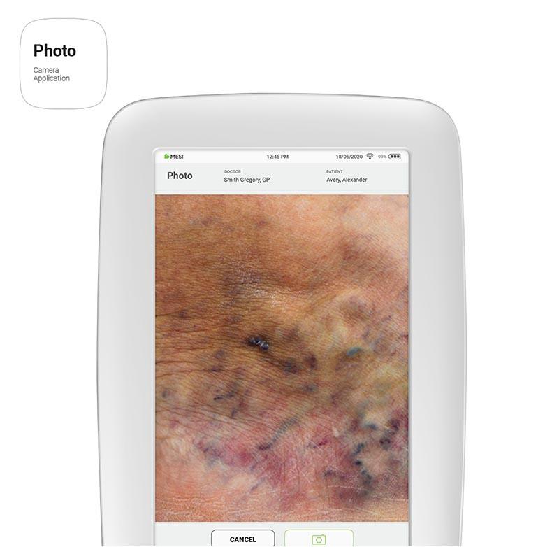 MESI mTABLET - Photo App